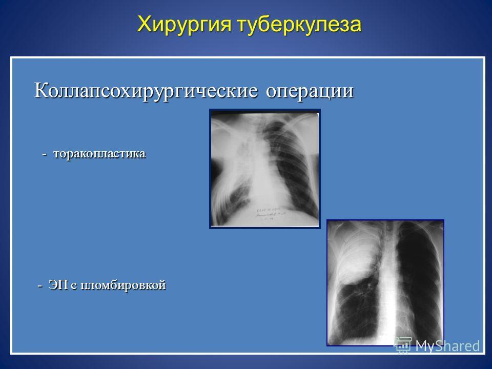 Хирургия туберкулеза Коллапсохирургические операции - торакопластика - торакопластика - ЭП с пломбировкой - ЭП с пломбировкой