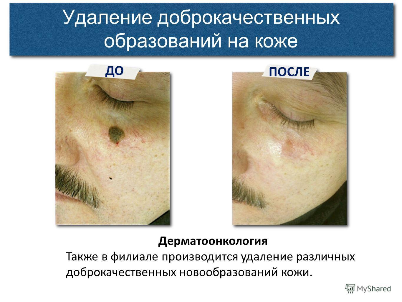 ДО ПОСЛЕ Удаление доброкачественных образований на коже Дерматоонкология Также в филиале производится удаление различных доброкачественных новообразований кожи.