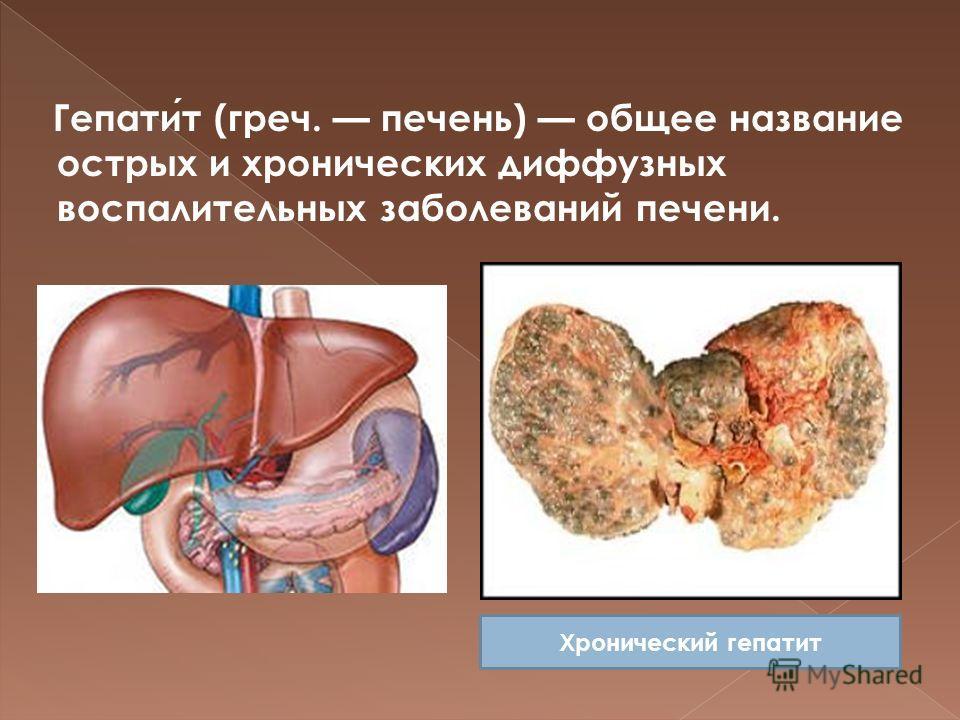 Обязательные прививки гепатит а