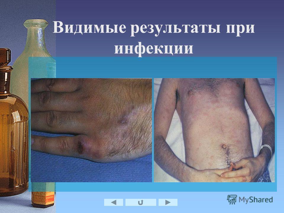 Видимые результаты при инфекции