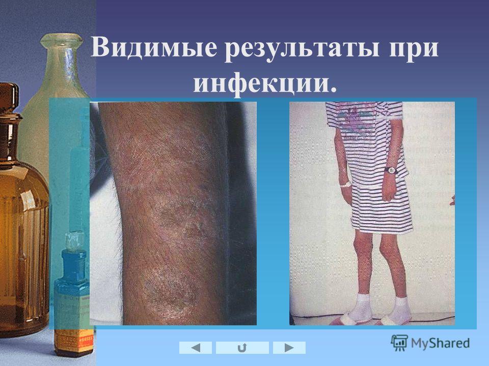Видимые результаты при инфекции.