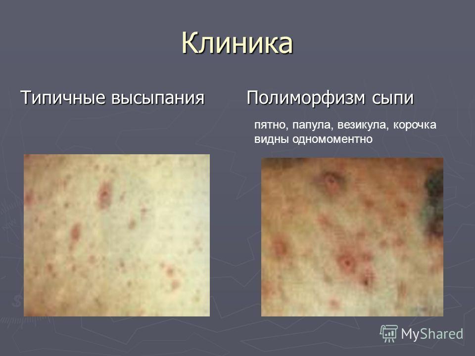 Клиника Типичные высыпания Полиморфизм сыпи пятно, папула, везикула, корочка видны одномоментно