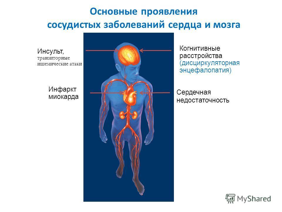 Основные проявления сосудистых заболеваний сердца и мозга Когнитивные расстройства (дисциркуляторная энцефалопатия) Cердечная недостаточность Инсульт, транзиторные ишемические атаки Инфаркт миокарда