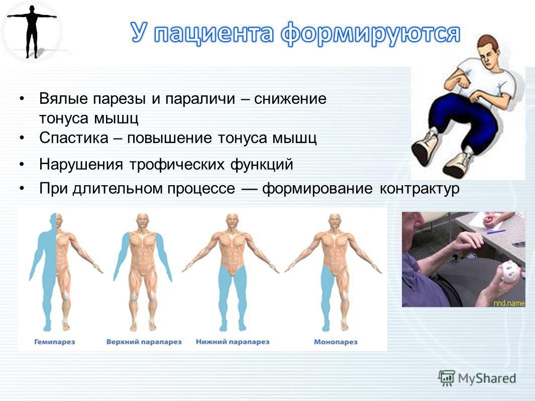 Вялые парезы и параличи – снижение тонуса мышц Спастика – повышение тонуса мышц Нарушения трофических функций При длительном процессе формирование контрактур