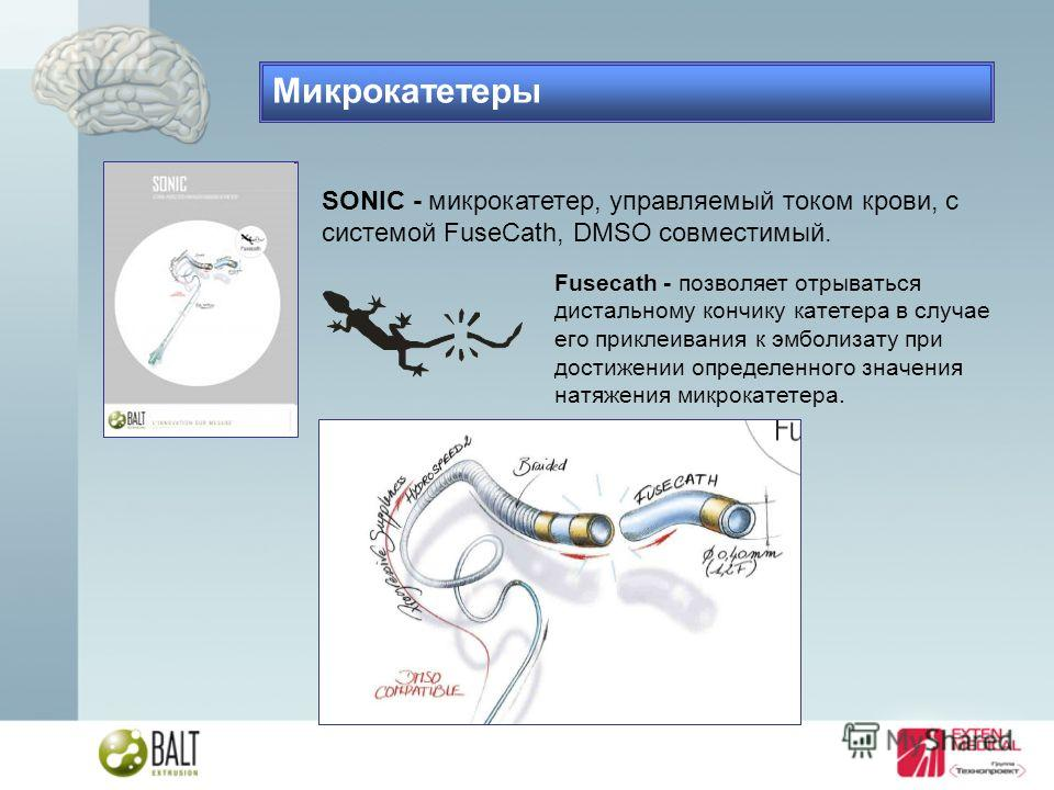 SONIC - микрокатетер, управляемый током крови, с системой FuseCath, DMSO совместимый. Fusecath - позволяет отрываться дистальному кончику катетера в случае его приклеивания к эмболизату при достижении определенного значения натяжения микрокатетера. М