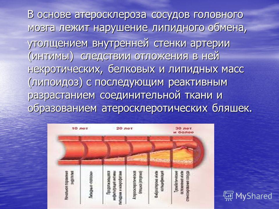 В основе атеросклероза сосудов головного мозга лежит нарушение липидного обмена, В основе атеросклероза сосудов головного мозга лежит нарушение липидного обмена, утолщением внутренней стенки артерии (интимы) следствии отложения в ней некротических, б