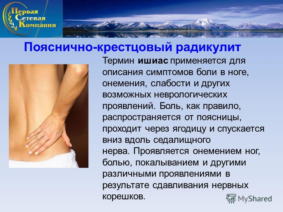 Пояснично-крестцовый радикулит Термин ишиас применяется для описания симптомов боли в ноге, онемения, слабости и других возможных неврологических проявлений. Боль, как правило, распространяется от поясницы, проходит через ягодицу и спускается вниз вд