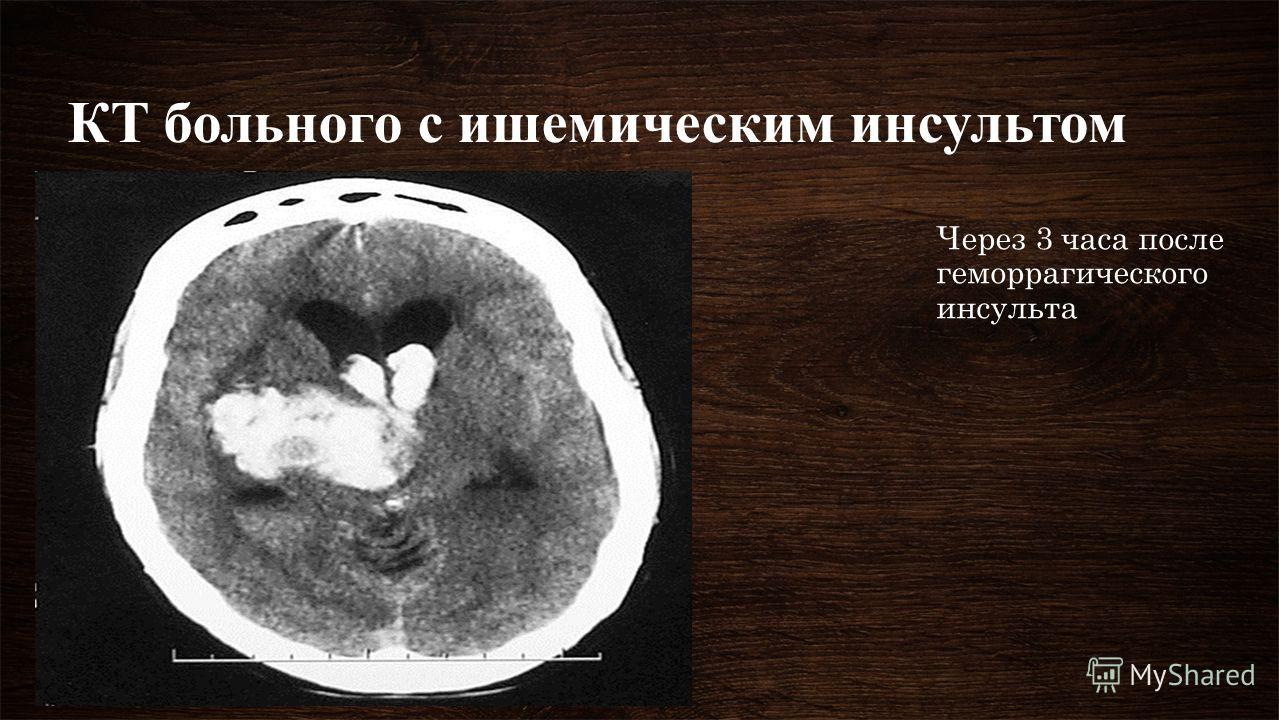 КТ больного с ишемическим инсультом Через 3 часа после геморрагического инсульта