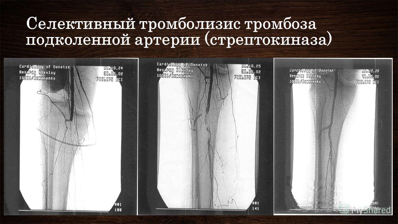 Селективный тромболизис тромбоза подколенной артерии (стрептокиназа)
