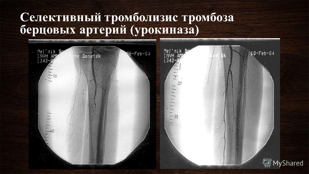 Селективный тромболизис тромбоза берцовых артерий (урокиназа)