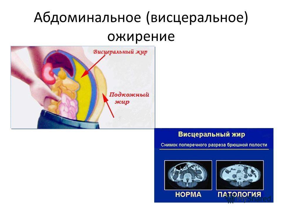 Абдоминальное (висцеральное) ожирение