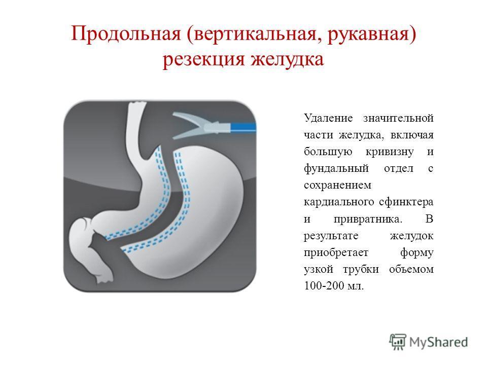 Продольная (вертикальная, рукавная) резекция желудка Удаление значительной части желудка, включая большую кривизну и фундальный отдел с сохранением кардиального сфинктера и привратника. В результате желудок приобретает форму узкой трубки объемом 100-