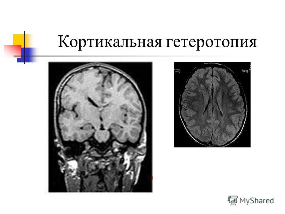 Гетеротропия фото