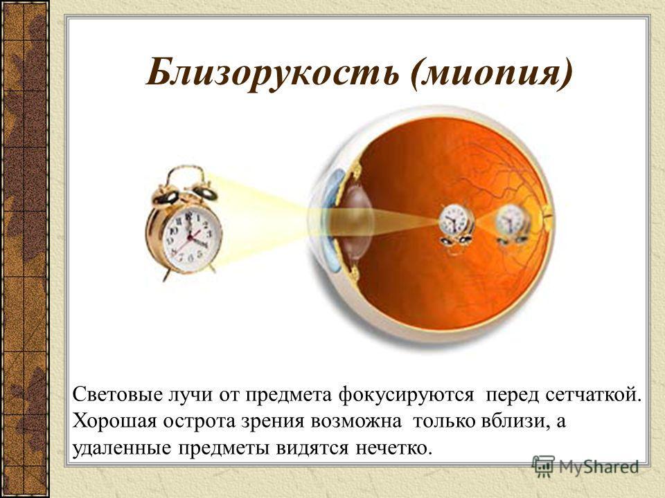Близорукость (миопия) Световые лучи от предмета фокусируются перед сетчаткой. Хорошая острота зрения возможна только вблизи, а удаленные предметы видятся нечетко.