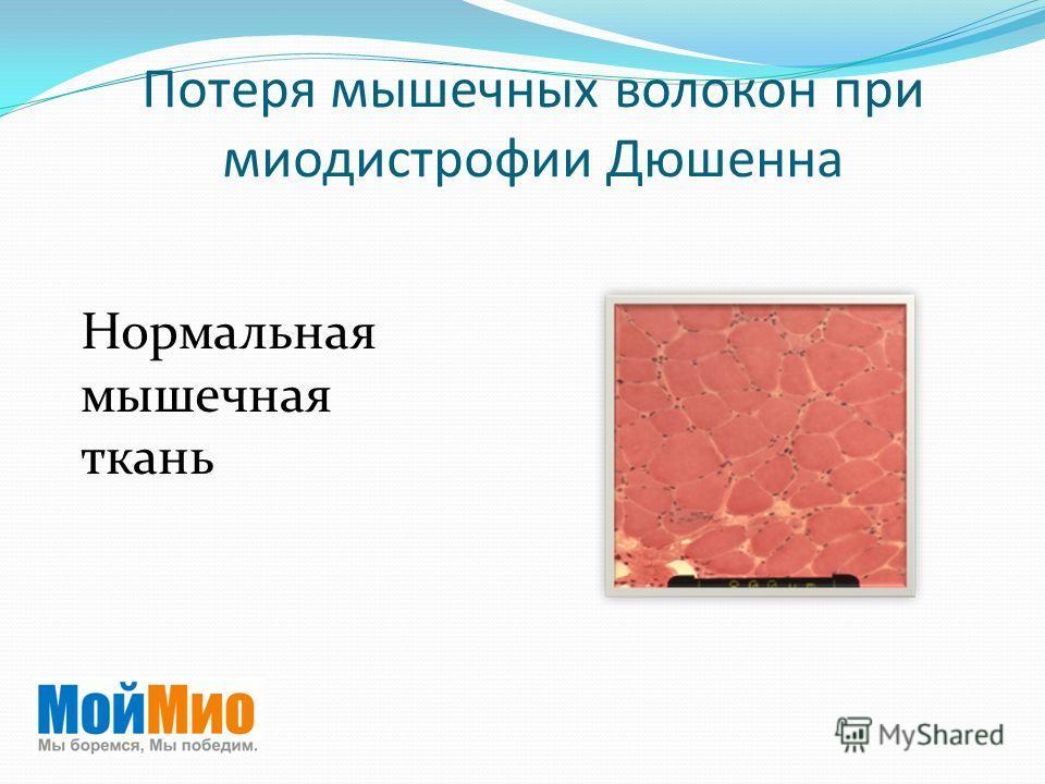 Потеря мышечных волокон при миодистрофии Дюшенна Нормальная мышечная ткань