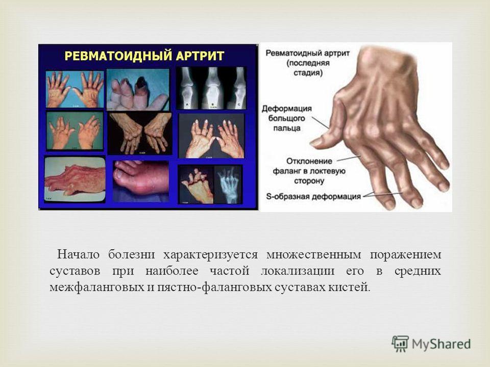 Начало болезни характеризуется множественным поражением суставов при наиболее частой локализации его в средних межфаланговых и пястно - фаланговых суставах кистей.