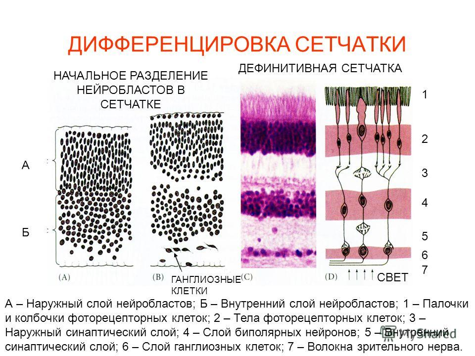 ДИФФЕРЕНЦИРОВКА СЕТЧАТКИ СВЕТ ГАНГЛИОЗНЫЕ КЛЕТКИ А Б 1 2 3 4 7 5 6 А – Наружный слой нейробластов; Б – Внутренний слой нейробластов; 1 – Палочки и колбочки фоторецепторных клеток; 2 – Тела фоторецепторных клеток; 3 – Наружный синаптический слой; 4 –