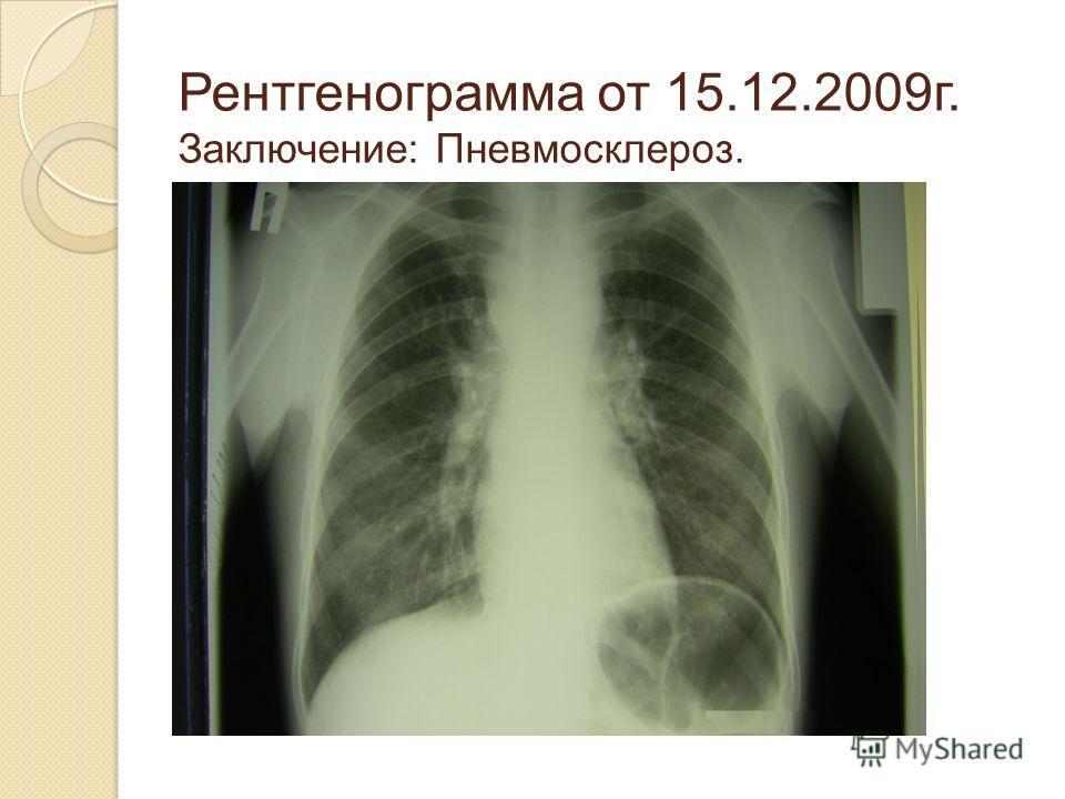 Рентгенограмма от 15.12.2009г. Заключение: Пневмосклероз.