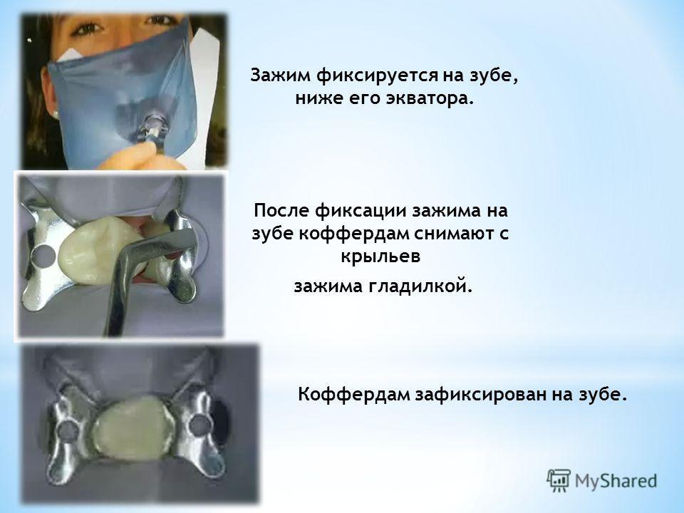 Зажим фиксируется на зубе, ниже его экватора. После фиксации зажима на зубе коффердам снимают с крыльев зажима гладилкой. Коффердам зафиксирован на зубе.