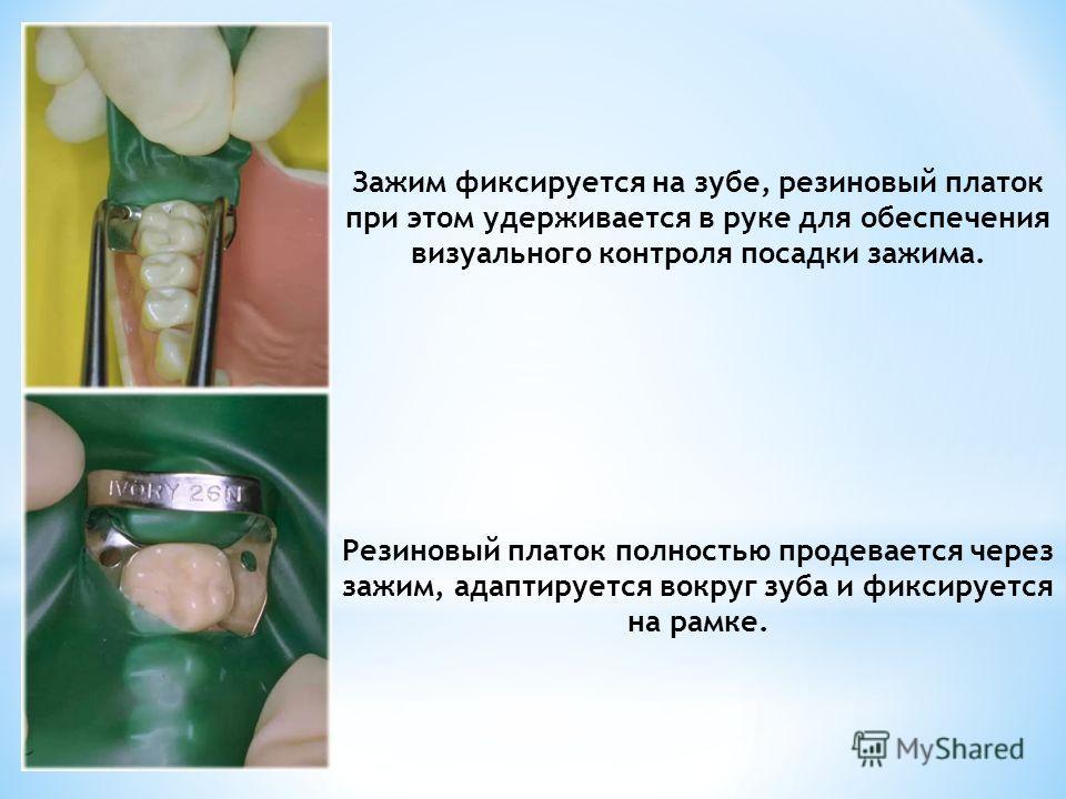 Зажим фиксируется на зубе, резиновый платок при этом удерживается в руке для обеспечения визуального контроля посадки зажима. Резиновый платок полностью продевается через зажим, адаптируется вокруг зуба и фиксируется на рамке.