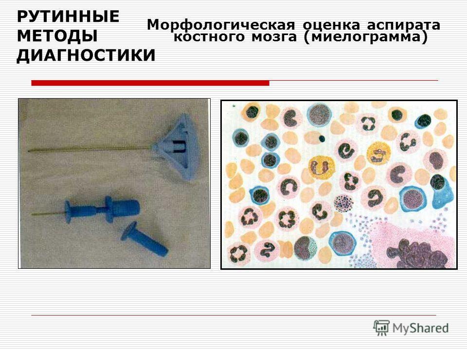РУТИННЫЕ МЕТОДЫ ДИАГНОСТИКИ Морфологическая оценка аспирата костного мозга (миелограмма)
