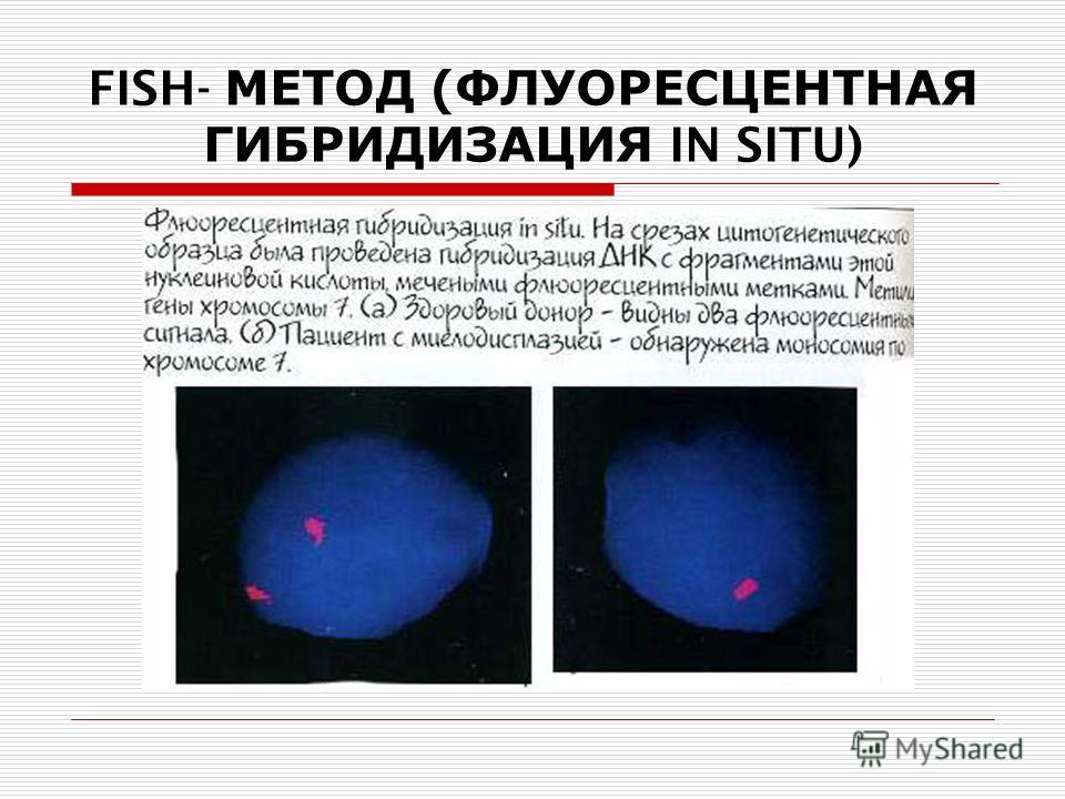 FISH- МЕТОД (ФЛУОРЕСЦЕНТНАЯ ГИБРИДИЗАЦИЯ IN SITU)