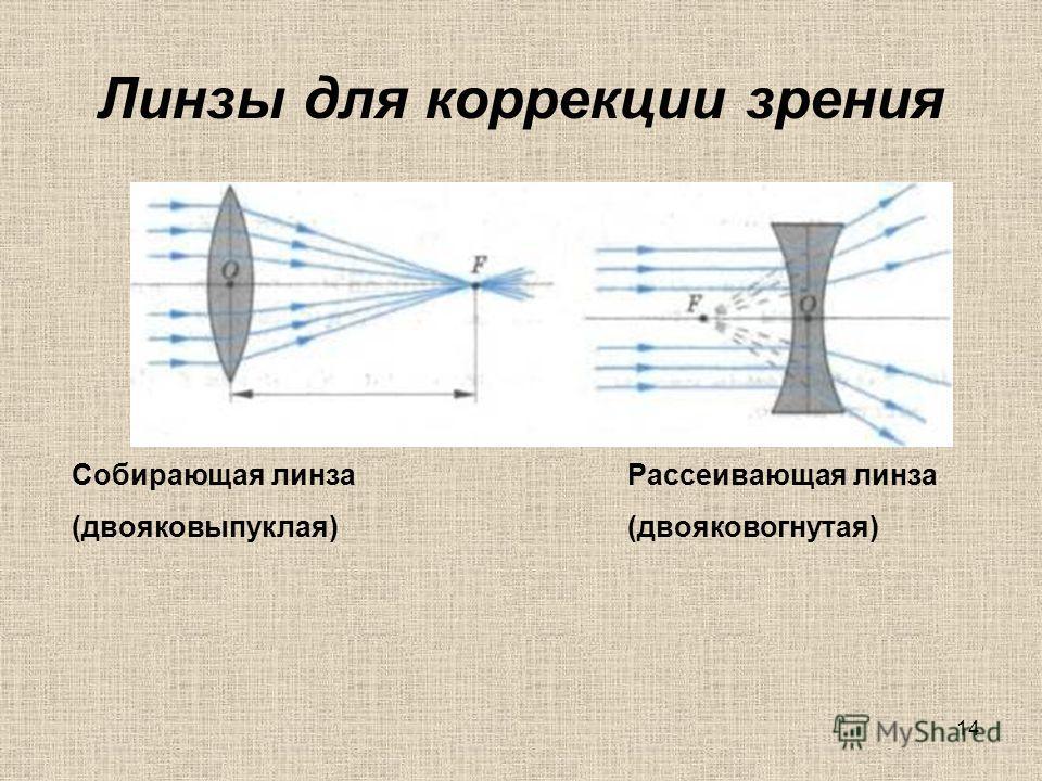 13 На рисунке изображены зрительные анализаторы здорового человека и больных. Определите, кто из пациентов (А, Б, В, Г) здоров. Какая часть зрительного анализатора повреждена у каждого больного.