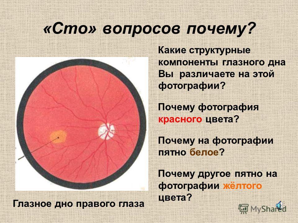 3 Оптическая система глаза