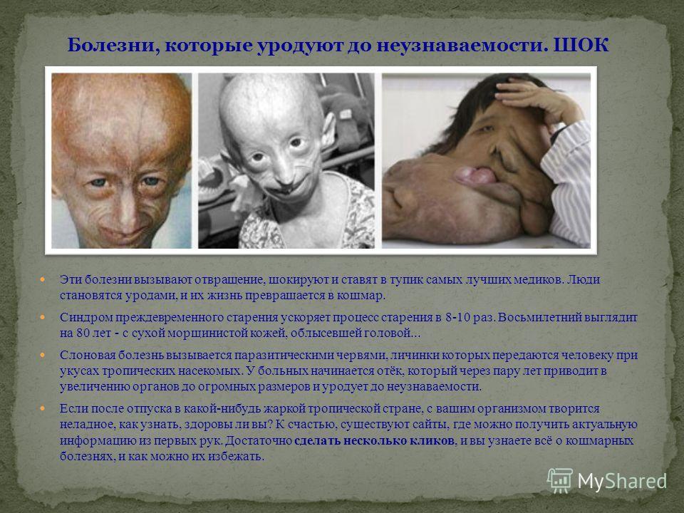 Эти болезни вызывают отвращение, шокируют и ставят в тупик самых лучших медиков. Люди становятся уродами, и их жизнь превращается в кошмар. Синдром преждевременного старения ускоряет процесс старения в 8-10 раз. Восьмилетний выглядит на 80 лет - с су