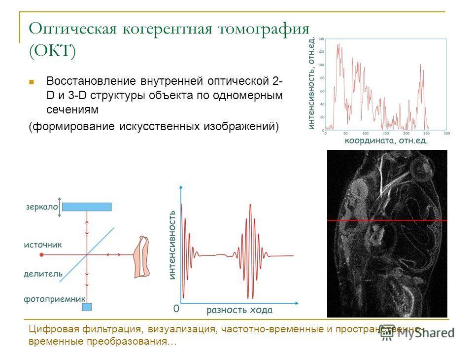 Оптическая когерентная томография (ОКТ) Восстановление внутренней оптической 2- D и 3-D структуры объекта по одномерным сечениям (формирование искусственных изображений) Цифровая фильтрация, визуализация, частотно-временные и пространственно- временн