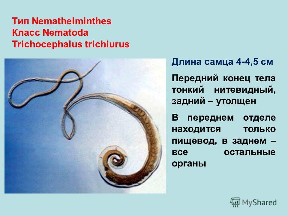 Тип Nemathelminthes Класс Nematoda Trichocephalus trichiurus Длина самца 4-4,5 см Передний конец тела тонкий нитевидный, задний – утолщен В переднем отделе находится только пищевод, в заднем – все остальные органы