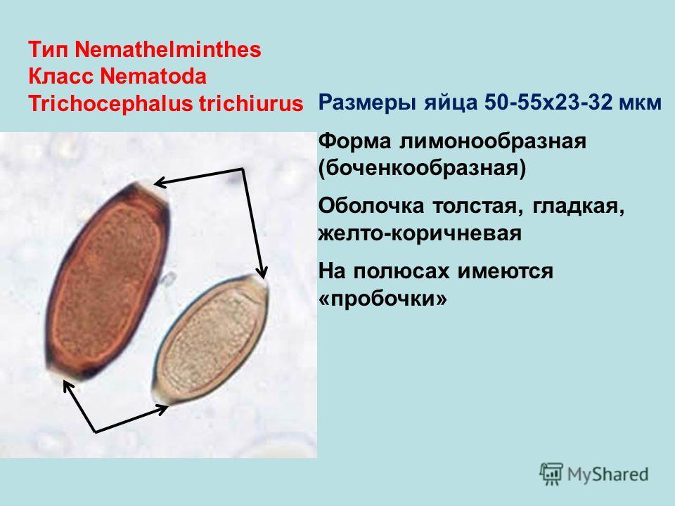 Тип Nemathelminthes Класс Nematoda Trichocephalus trichiurus Размеры яйца 50-55х23-32 мкм Форма лимонообразная (боченкообразная) Оболочка толстая, гладкая, желто-коричневая На полюсах имеются «пробочки»