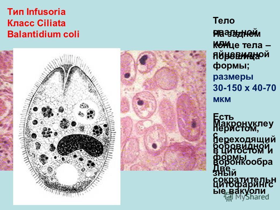 Тип Infusoria Класс Ciliata Balantidium coli Тело овальной или яйцевидной формы; размеры 30-150 х 40-70 мкм Есть перистом, переходящий в цитостом и воронкообра зный цитофарингс На заднем конце тела – порошица Макронуклеу с бобовидной формы Две сократ