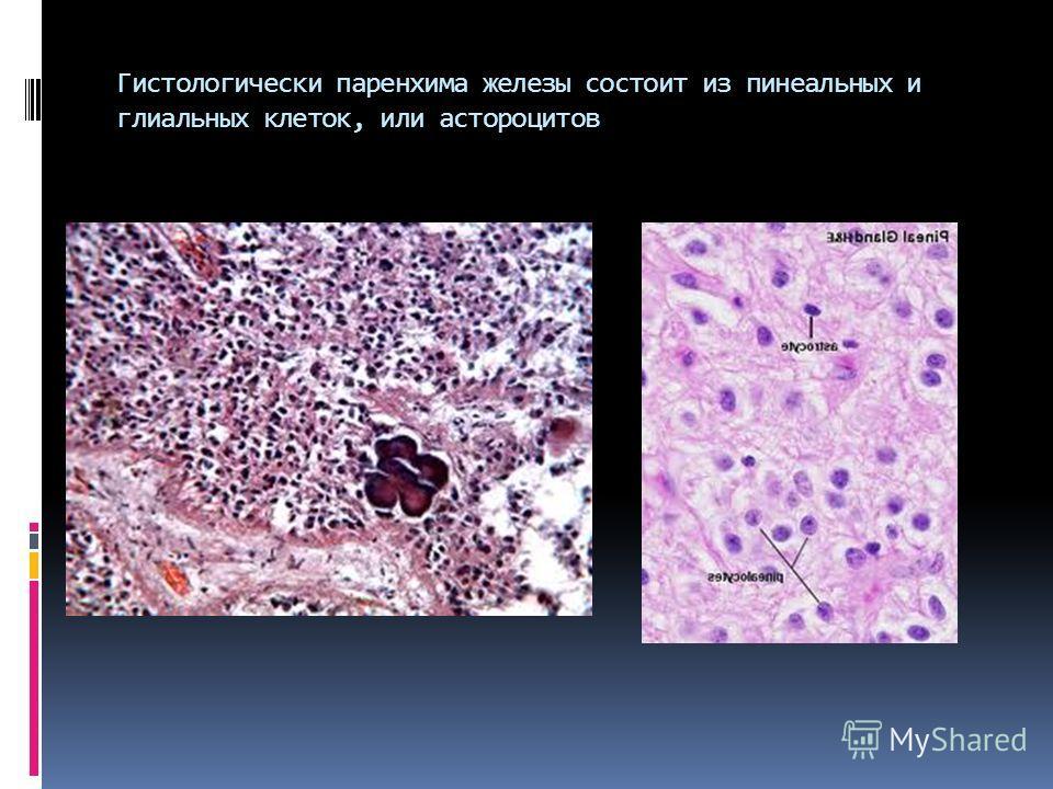 Гистологически паренхима железы состоит из пинеальных и глиальных клеток, или астороцитов