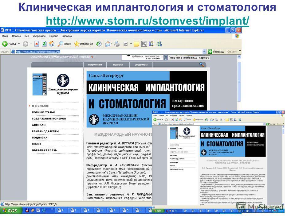 Клиническая имплантология и стоматология http://www.stom.ru/stomvest/implant/ http://www.stom.ru/stomvest/implant/