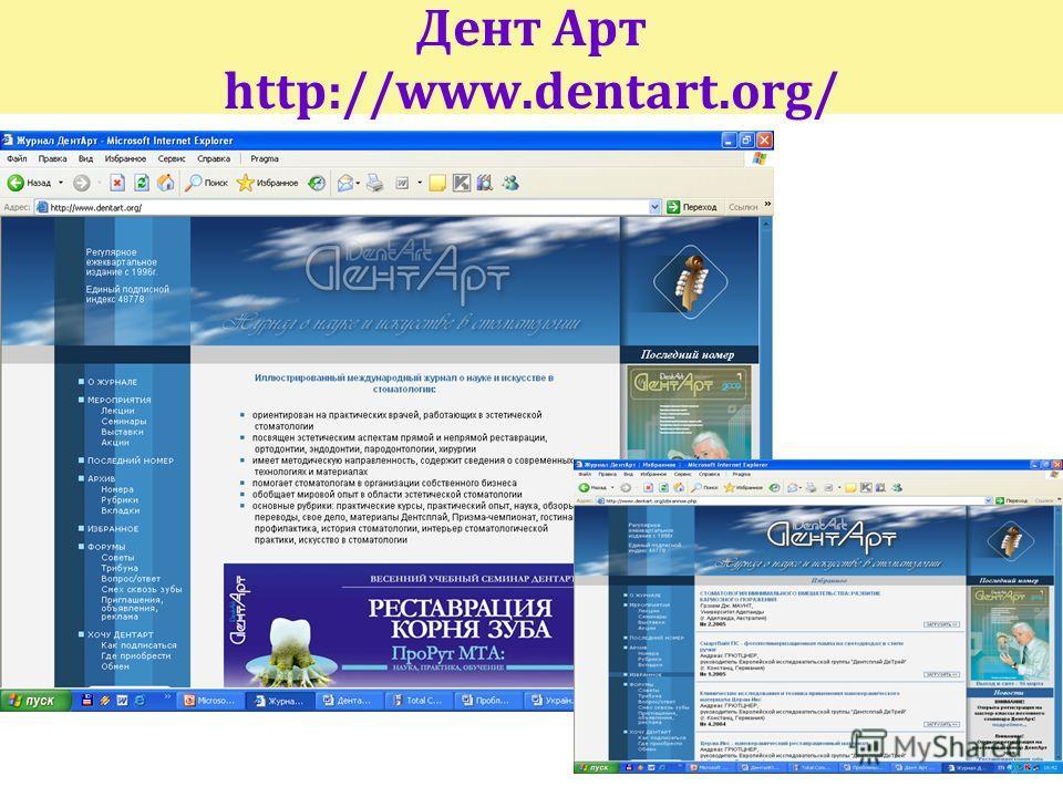 Дент Арт http://www.dentart.org/