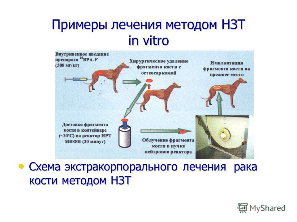 Примеры лечения методом НЗТ in vitro Схема экстракорпорального лечения рака кости методом НЗТ Схема экстракорпорального лечения рака кости методом НЗТ