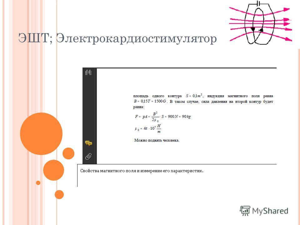 ЭШТ; Электрокардиостимулятор