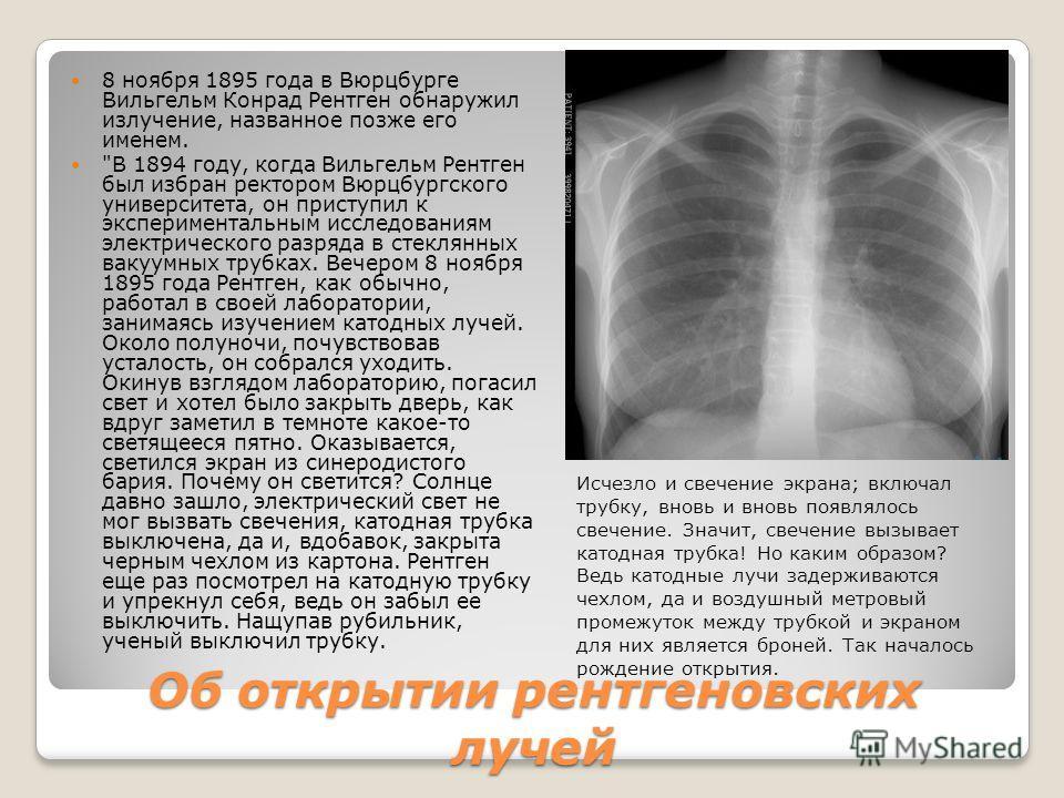 Об открытии рентгеновских лучей 8 ноября 1895 года в Вюрцбурге Вильгельм Конрад Рентген обнаружил излучение, названное позже его именем.