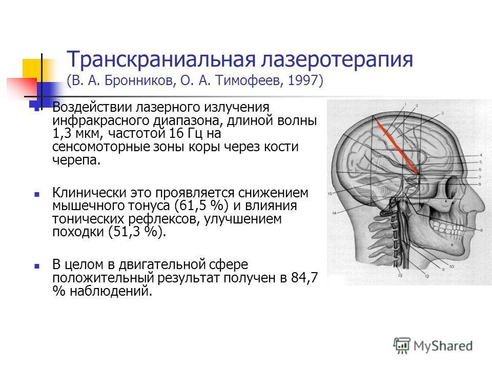 Транскраниальная лазеротерапия (В. А. Бронников, О. А. Тимофеев, 1997) Воздействии лазерного излучения инфракрасного диапазона, длиной волны 1,3 мкм, частотой 16 Гц на сенсомоторные зоны коры через кости черепа. Клинически это проявляется снижением м
