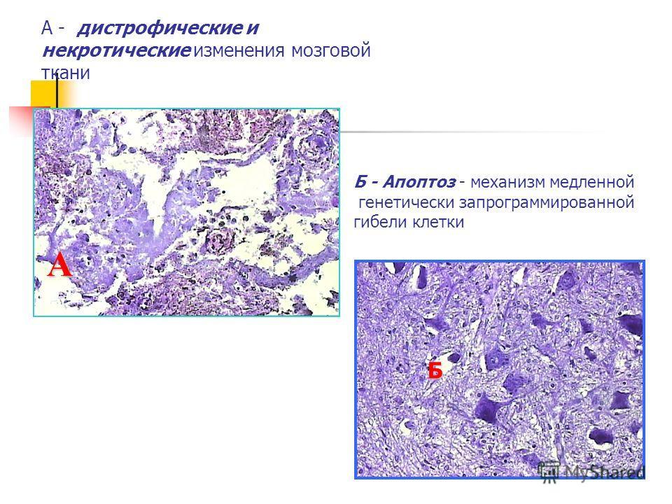 А - дистрофические и некротические изменения мозговой ткани А Б - Апоптоз - механизм медленной генетически запрограммированной гибели клетки Б