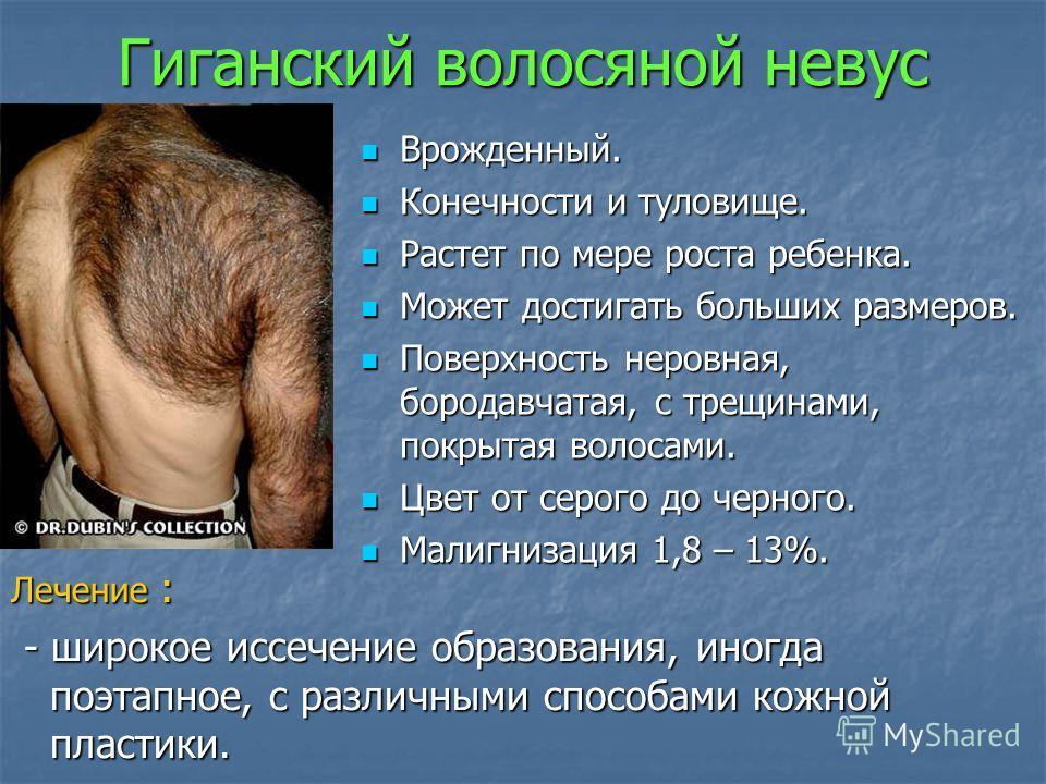 Гиганский волосяной невус Врожденный. Врожденный. Конечности и туловище. Конечности и туловище. Растет по мере роста ребенка. Растет по мере роста ребенка. Может достигать больших размеров. Может достигать больших размеров. Поверхность неровная, боро