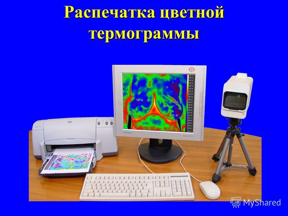 Злокачественная опухоль орбиты Псевдотумор орбиты Математическая компьютерная обработка и представление результатов в виде цветных изотерм и графиков