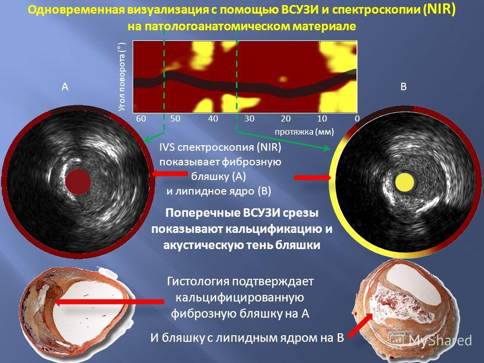 протяжка (мм) Угол поворота (°) 6050403020100 Гистология подтверждает кальцифицированную фиброзную бляшку на А Поперечные ВСУЗИ срезы показывают кальцификацию и акустическую тень бляшки Одновременная визуализация с помощью ВСУЗИ и спектроскопии ( NIR