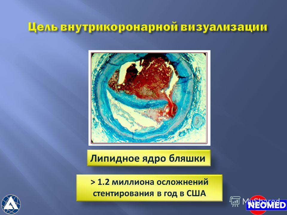 Цель внутрикоронарной визуализации Липидное ядро бляшки > 1.2 миллиона осложнений стентирования в год в США