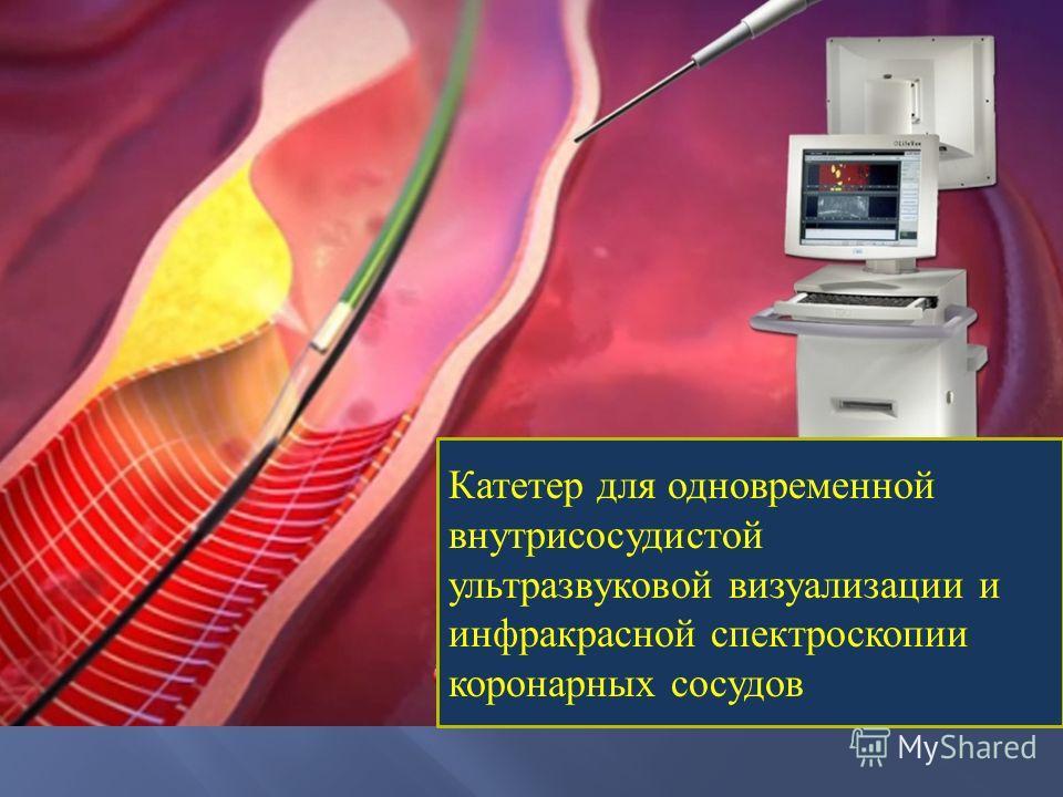 Катетер для одновременной внутрисосудистой ультразвуковой визуализации и инфракрасной спектроскопии коронарных сосудов