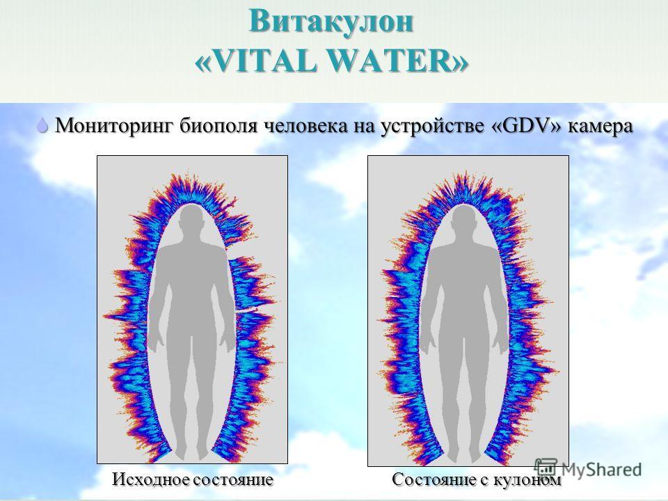 Витакулон «VITAL WATER» Исходное состояние Состояние с кулоном Мониторинг биополя человека на устройстве «GDV» камера Мониторинг биополя человека на устройстве «GDV» камера