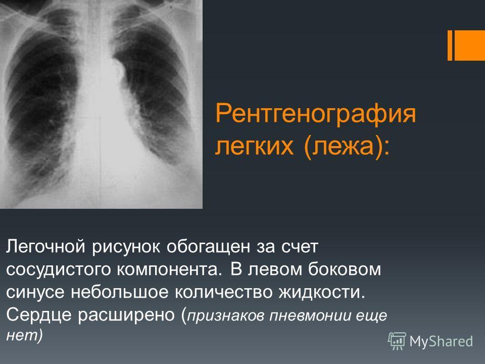 Рентгенография легких (лежа): Легочной рисунок обогащен за счет сосудистого компонента. В левом боковом синусе небольшое количество жидкости. Сердце расширено ( признаков пневмонии еще нет)