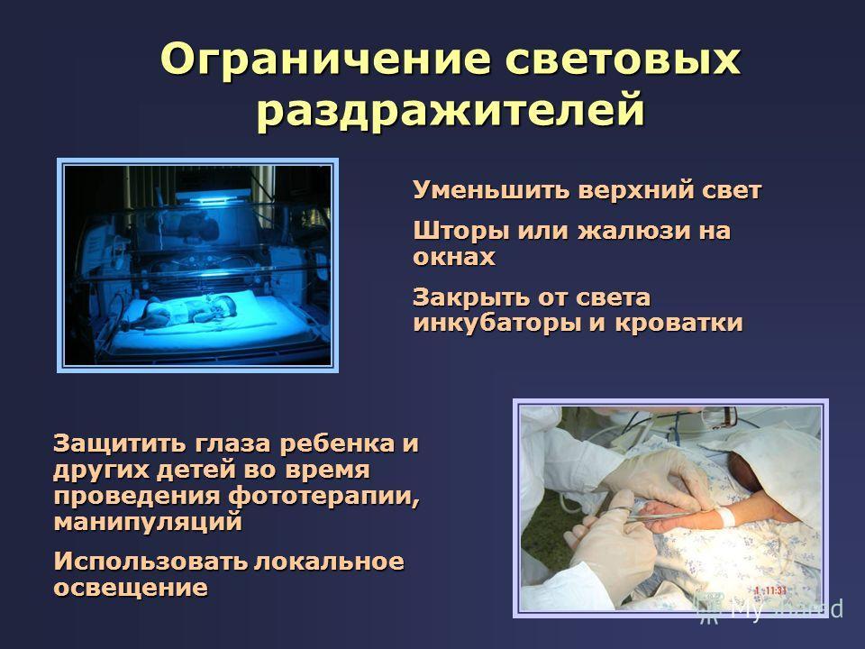 Ограничение световых раздражителей Уменьшить верхний свет Шторы или жалюзи на окнах Закрыть от света инкубаторы и кроватки Защитить глаза ребенка и других детей во время проведения фототерапии, манипуляций Использовать локальное освещение