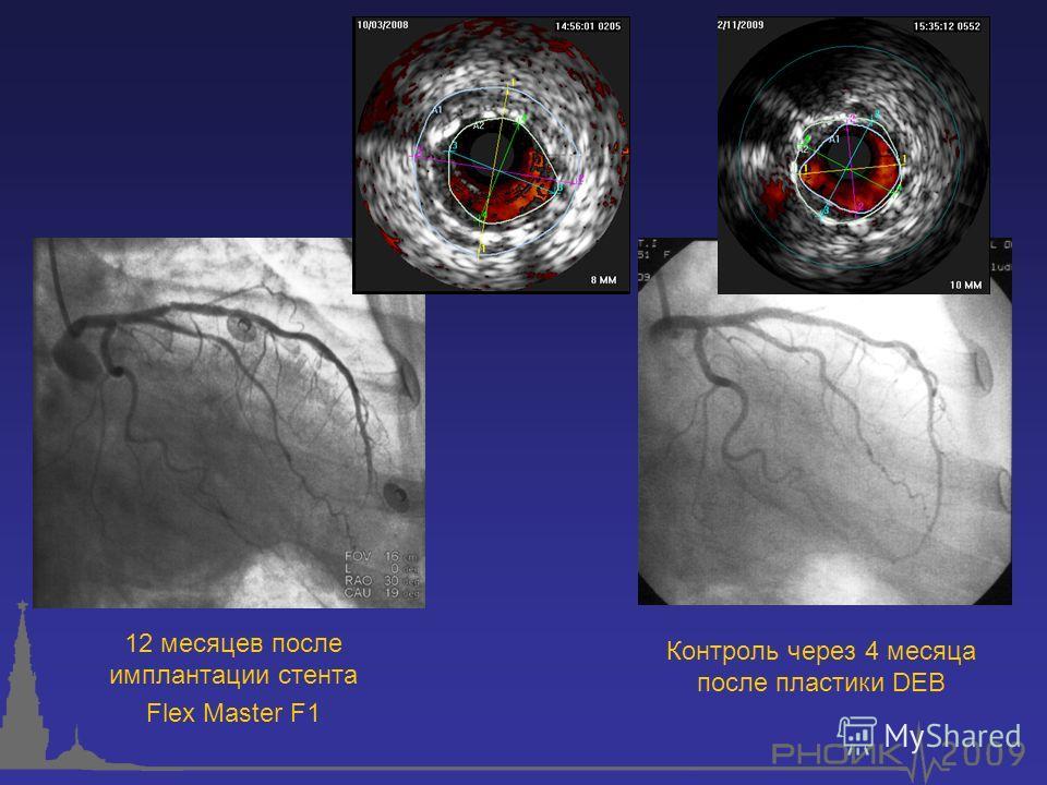 12 месяцев после имплантации стента Flex Master F1 Контроль через 4 месяца после пластики DEB